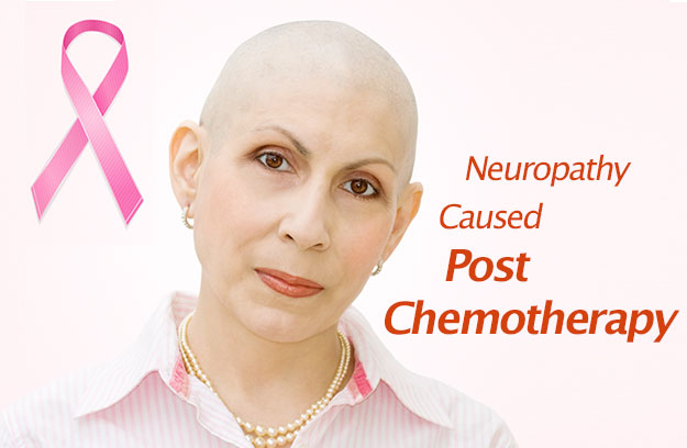 Post Chemotherapy